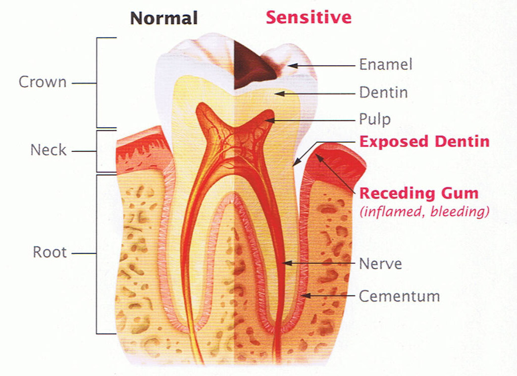 Tooth Sensitivity | Finger Lakes Dental Care