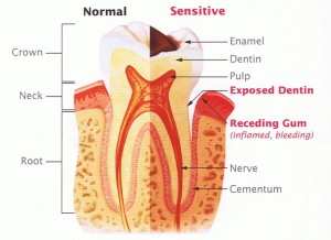 tooth-sensitivity